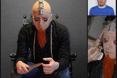 caracterizacion prostética